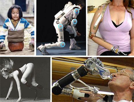 model med benprotese