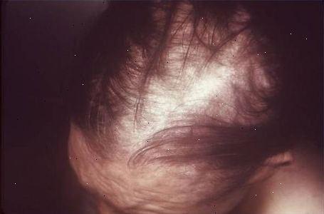 donere hår til kræft