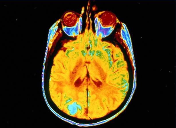 elektriske stød i hjernen