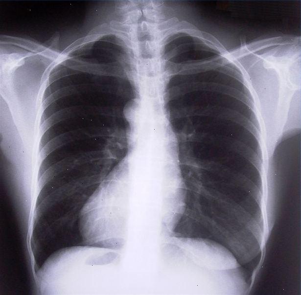 bakterier i lungerne